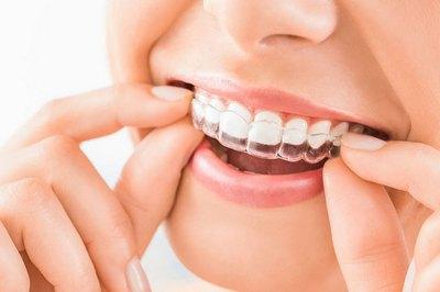 Изготовление капп, Шведская стоматология