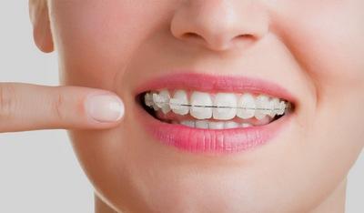 Брекет-системы, Шведская стоматология