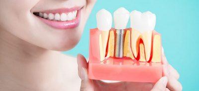 Имплантация, Шведская стоматология