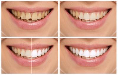 Эстетическая стоматология, Шведская стоматология