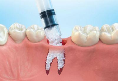 Костные материалы, Шведская стоматология