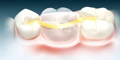 Микропротезирование зубов, Шведская стоматология
