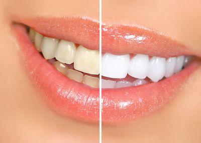 Отбеливание зубов, Шведская стоматология