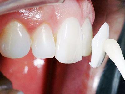 Микропротезирование зубов, виниры, Шведская стоматология